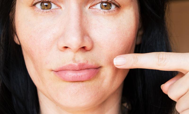acne-adolescentes-mujeres-piel-sana